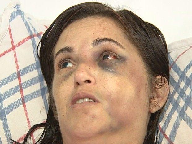 Sandra apanhou do marido e está com traumas no rosto (Foto: Reprodução / TV TEM)